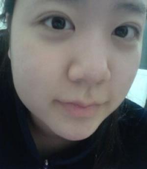 面部吸脂手术6个月案例分享,小脸立即出现啦!