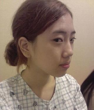 脸部自体脂肪移植+硅胶隆鼻+切除鼻骨及软骨矫正鹰钩鼻+鼻尖移植软骨整形手术案例