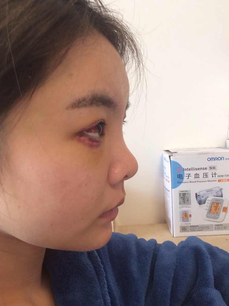 面部填充术后注意事项是什么,需要多长时间才能恢复的正产