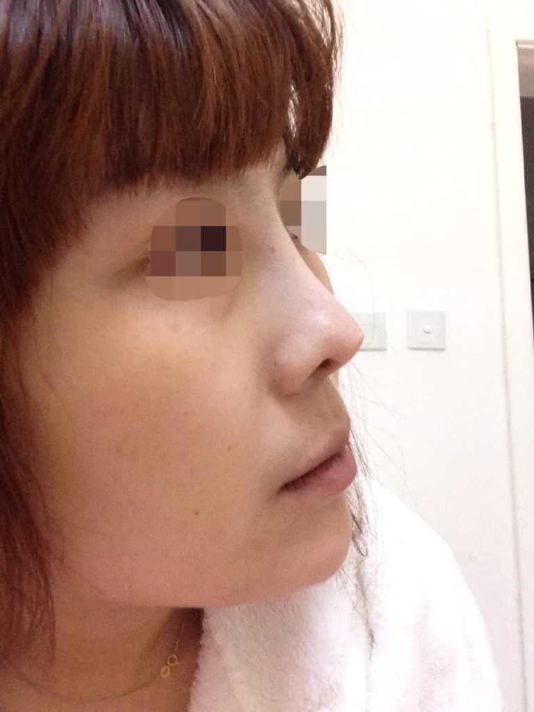 膨体隆鼻的害处是什么,还有鼻子在七年前做过,鼻头有彭体,几年后鼻头顶出个尖发胀,去年重新做了一次,忘记彭体的事了,因七年前不太懂也没有告诉医生,医生手术中发现也没给取出,又塞回去了,结果半年后出尖特别明显,我的鼻头皮肤已经很薄了。我现在面临三个问题想解决,颧骨,下颌,鼻子修复