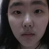 有内眦赘皮割双眼皮要注意什么,我适合什么形状的双眼皮