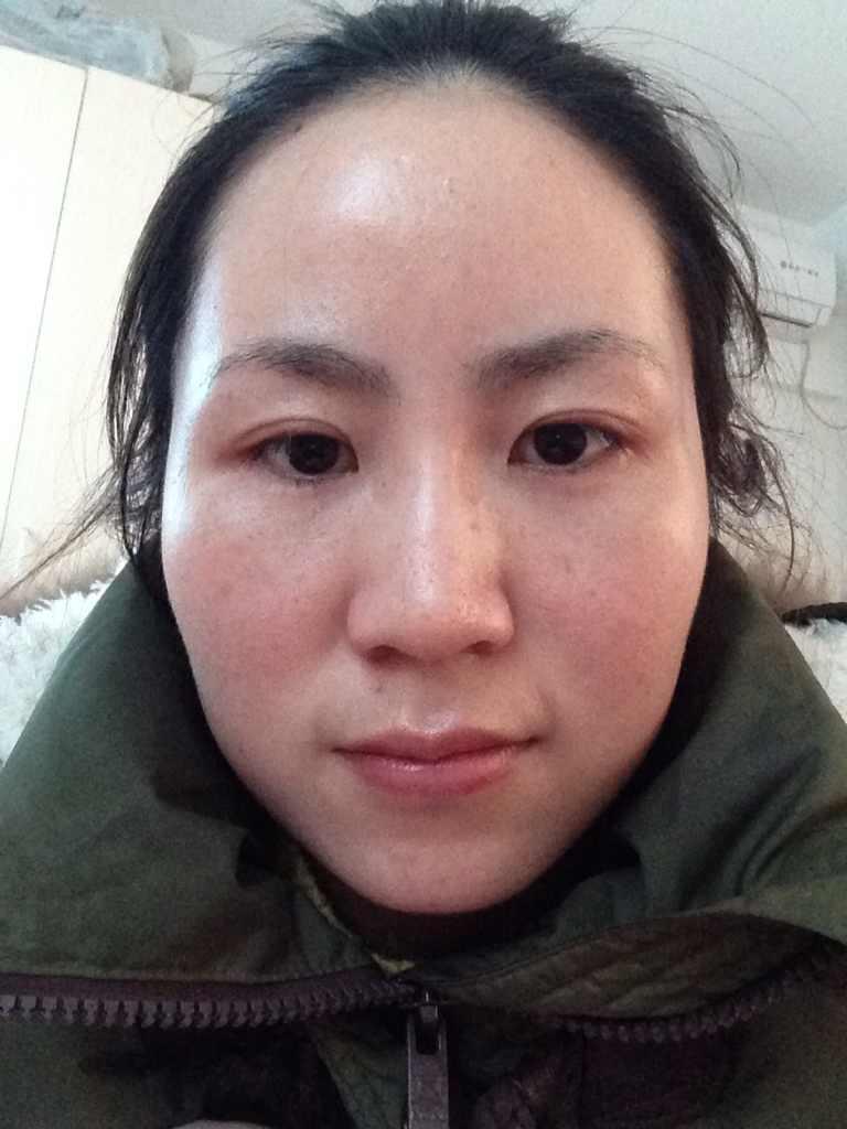 自体脂肪移植丰太阳穴怎么样,适合我的脸型吗
