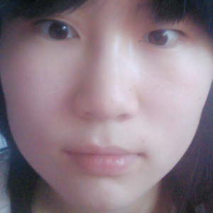 做双眼皮会不会留疤,医生你好我想改变的部位是眼睛。请问我是不是应该做双眼皮? 因为现在是一单一双。做双眼皮会不会留疤痕?以前我在颈部做过去痣的小手术结果留疤痕了,是不是疤痕体质?