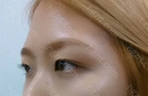我做开内眼角+自然结合法双眼皮+硅胶隆鼻+切除鼻骨及软骨矫正鹰钩鼻+脸部自体脂肪移植整形手术