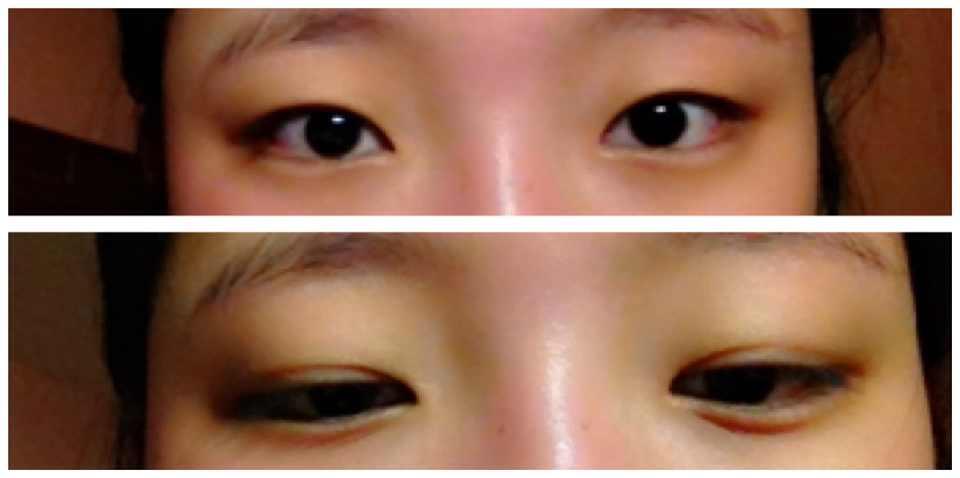 双眼皮不明显怎么办,我的眼睛是内双,睁开后就不明显了,什么样的双眼皮手术更适合我的眼睛?显得更自然。