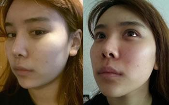 轮廓手术+双眼皮修复整形手术案例