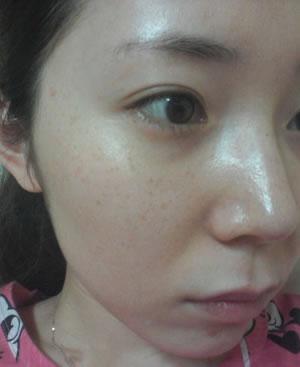 我的除斑手术案例,祛斑手术能保持多久