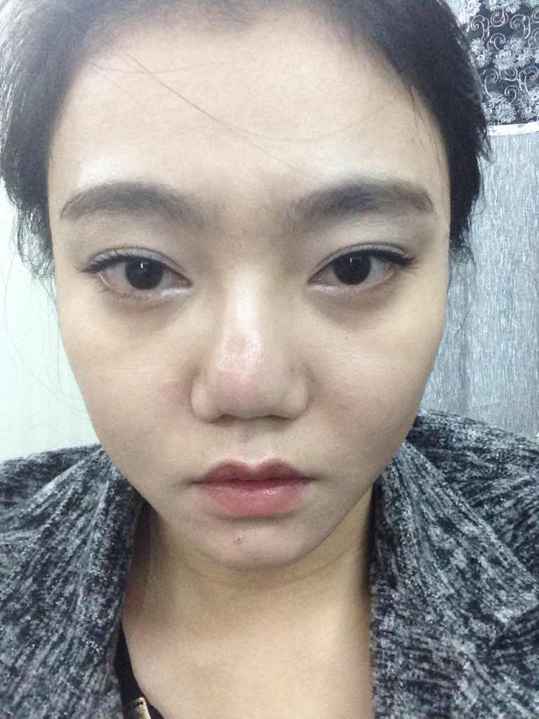 鼻头肥大矫正术是怎么样的,我可以做吗