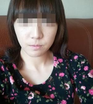 面部不对称矫正手术案例,看我的效果好吗