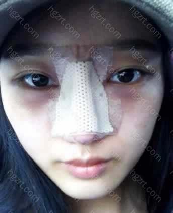 手术次日 起青的比我想的不厉害。 可是哈哈大笑的话,感觉鼻子有点疼哈哈。。。