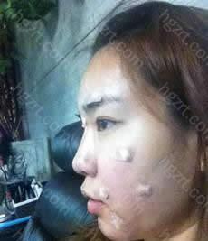 脸部自体脂肪移植后记10