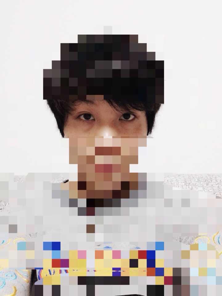 韩国眼底脂肪重组怎么样,这次一定要改变自己的眼睛形状