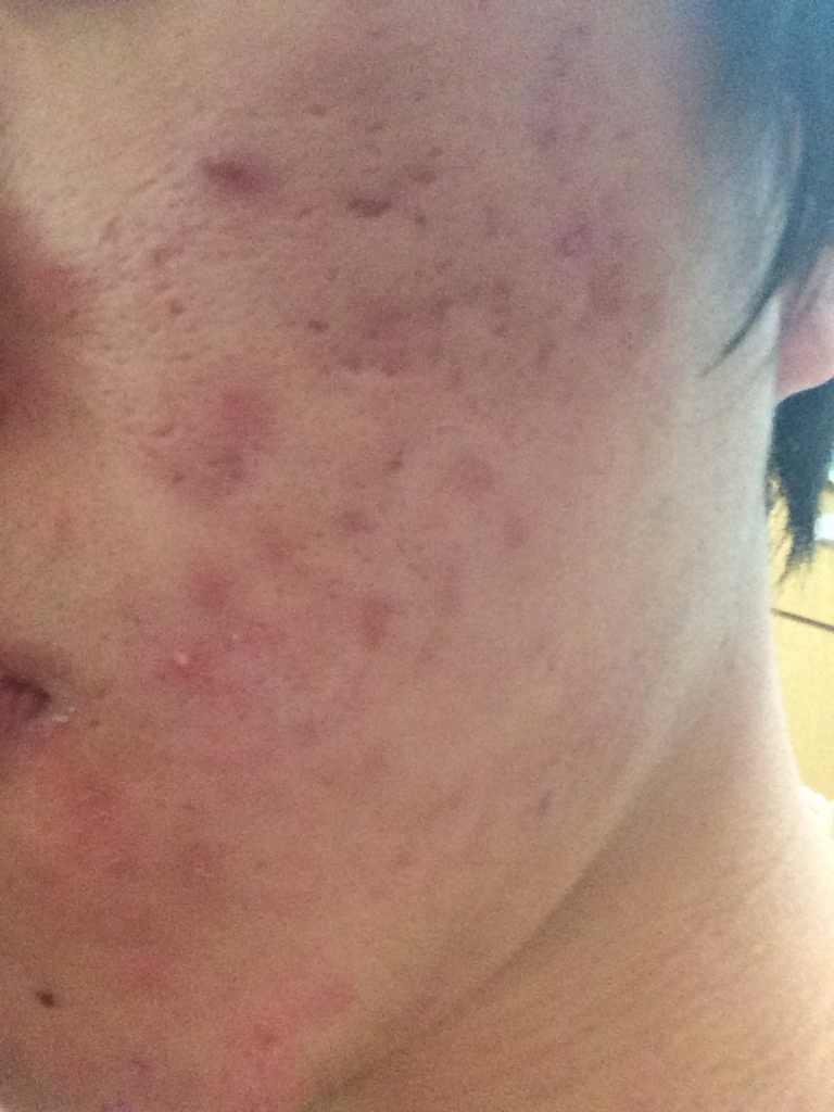 脸部痘坑怎么修复,这种痘痕很重,甚至出现了一片坑,请问如何可以治疗呢?谢谢?