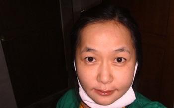 下颚前凸+V-line瓜子脸手术案例 真的不疼