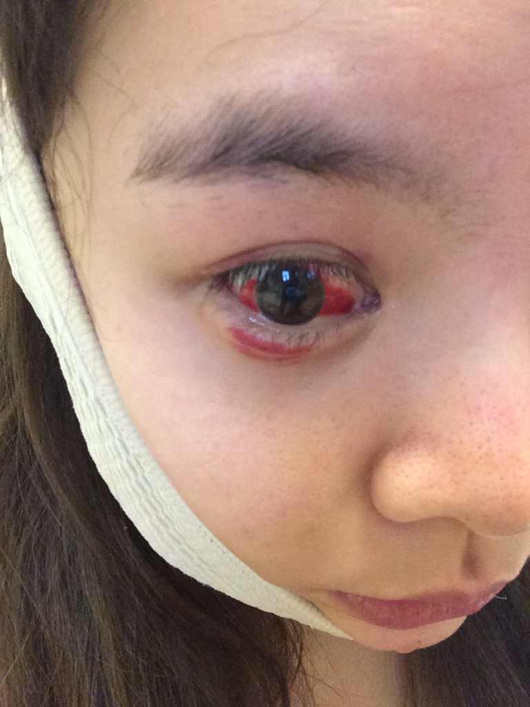 眼袋手术后注意事项有哪些,眼睛做眼袋手术十七天了 眼睛充血还是很厉害 周围也是红的 我必须要个说法 严重影响正常生活 请珠儿丽医院回复 太差劲了