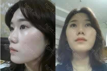 手术前的照片