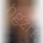 肿泡眼怎么割双眼皮,我应该怎么整 ?眼睛做双眼皮那种方法适合我?鼻子怎么整?