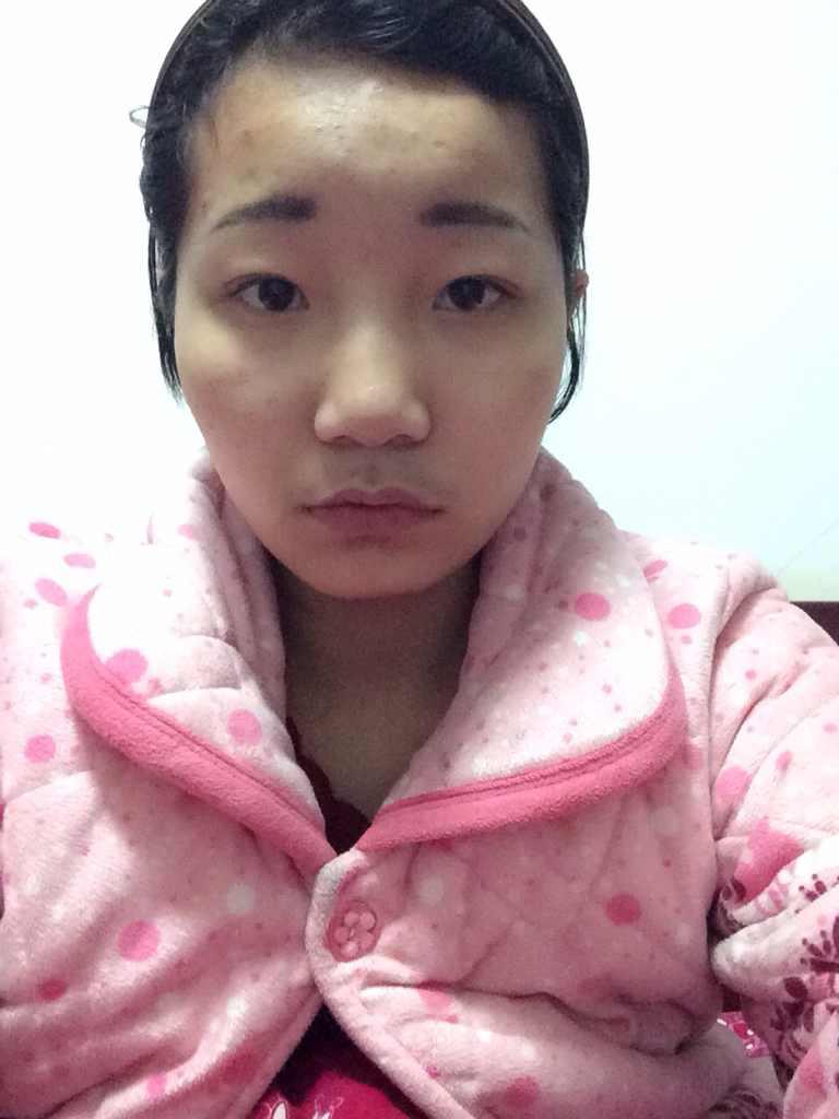 假体垫下巴的切口在哪了里,其实我整张脸都想整。这大概需要多少钱呢。未成年可以整容吗。