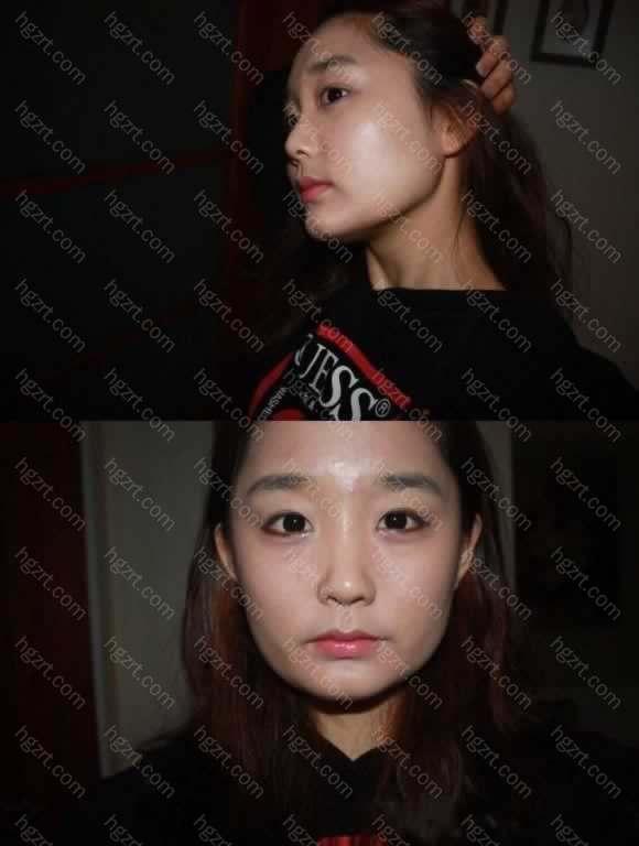 手术前我的脸形是个四方脸形了