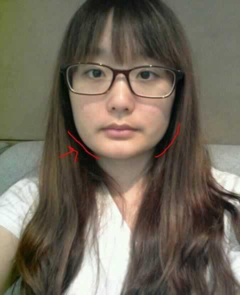ACCU激光面部提升+V-LINE瓜子脸整形手术案例