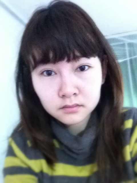 鼻部假体取出多少钱,我做了双眼皮和隆鼻手术但对鼻部不满意可以取出吗,怎么该呢