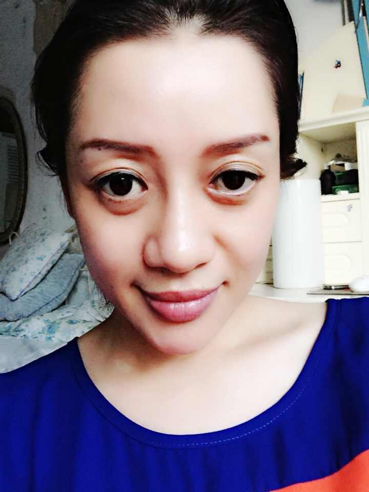 多层眼皮怎么办,能修复成正常的双眼皮吗?