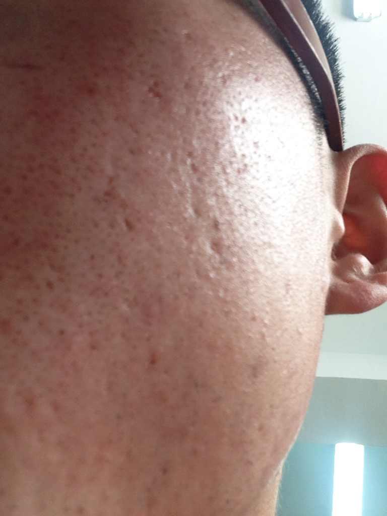 痘疤修复凹洞痘坑怎么做,我的皮肤远看还好,不能近看,这是以前挤痘的疤痕坑!有什么解决方法?希望给出意见