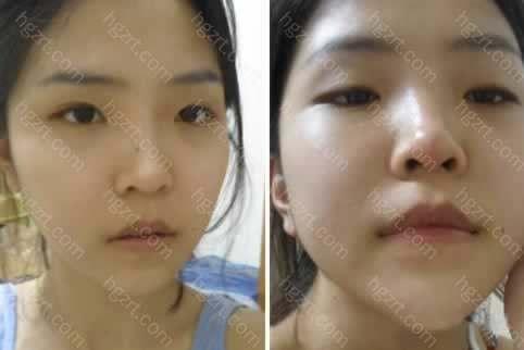 下面是手术前到手术后1个月的变化过程