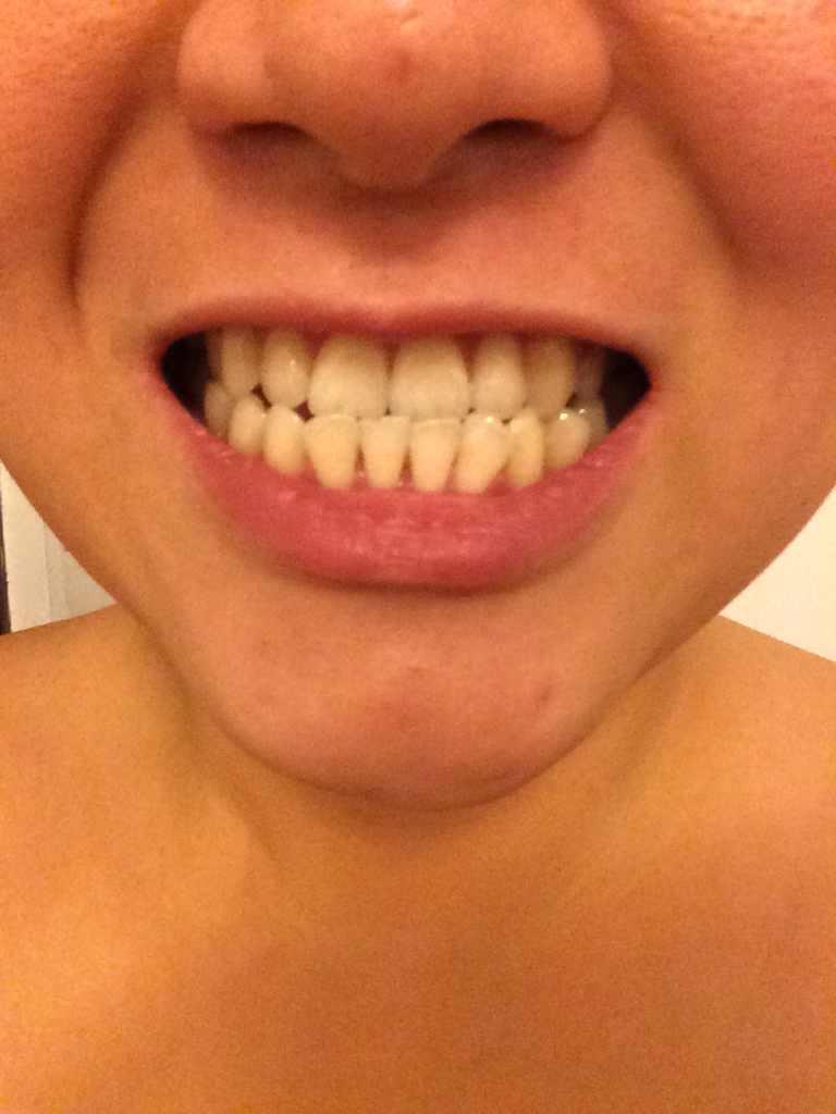 下颚手术怎么判断,想问一下,这样需要做下颚手术吗?费用大概是多少?以前做过牙齿矫正,但是后来牙齿又恢复成反齿状态。