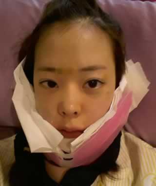长下巴矫正+V-LINE瓜子脸手术案例,期待改变。