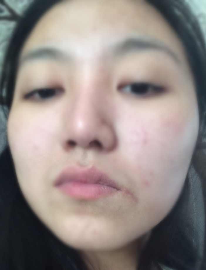 嘴上有疤痕怎么办,激光治疗疤痕效果好吗