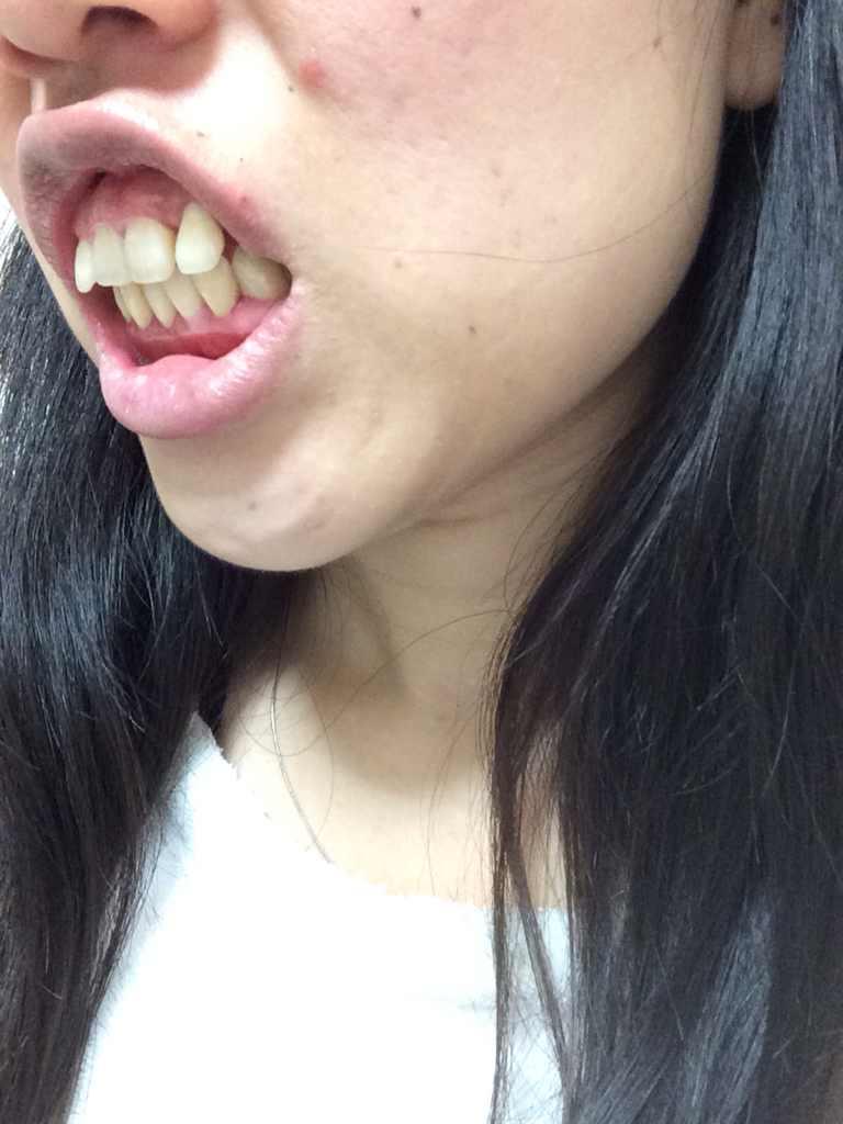 牙齿不整齐怎么办,我的牙齿不整齐、牙床也太高、要怎么修复、大概需要多