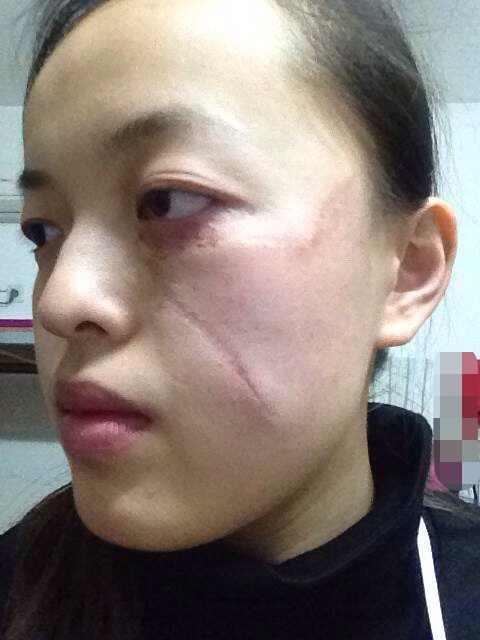 激光祛疤效果怎么样,想我这样的疤痕做几次才能完全祛除