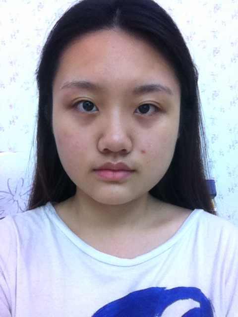 面部溶脂针安全吗,是什么原理,我需要做些什么手术?想变得漂亮和纯情一点的感觉
