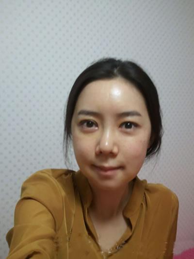 埋线法双眼皮+硅胶隆鼻+脸部脂肪移植整形手术2个月案例