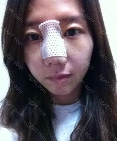 整容之前我认为做完手术后脸会肿的非常严重