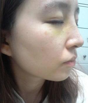 埋线法双眼皮+硅胶隆鼻+鼻尖移植软骨案例