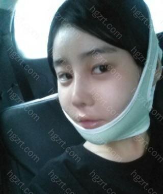 其实第1次做隆鼻手术后我想要的效果就是这样的