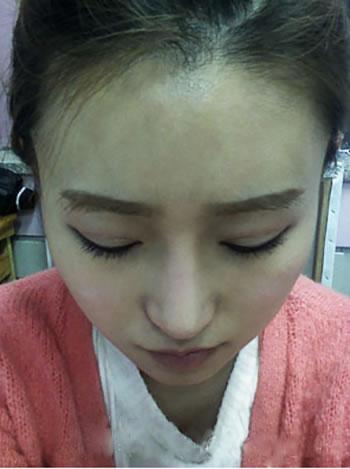肉毒素瘦脸针+自体脂肪额头填充+硅胶隆鼻+软骨移植垫鼻尖案例