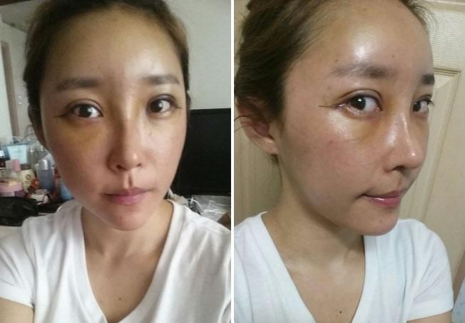 埋线法双眼皮+开外眼角+硅胶隆鼻+自体脂肪移植+凸嘴整形后案例