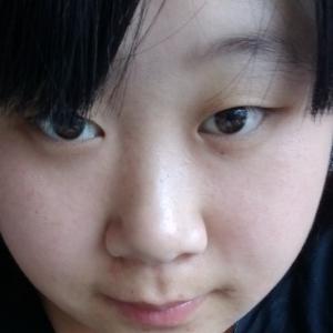 双眼皮开外眼角手术怎么样,能做出什么眼睛的形状