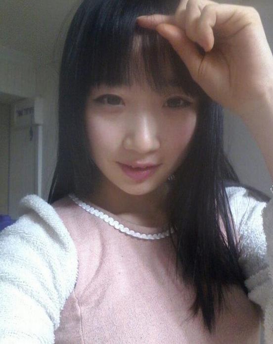 v-line手术瓜子脸案例 想整容的美女们,来韩国吧