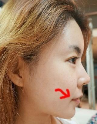 眼形矫正+ V字脸提升术+脂肪移植案例