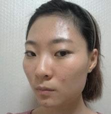 磨骨术+垫下巴案例,是不是很自然啊?脸也是变小了吧!