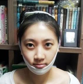 下颌角手术+激光嫩肤案例,从屌丝女变成美丽女。