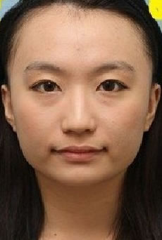 面部轮廓手术案例,朋友都说我整完之后像个混血儿,特别的漂亮。