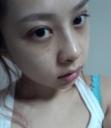 脸部自体脂肪+双眼皮+鼻子整形案例