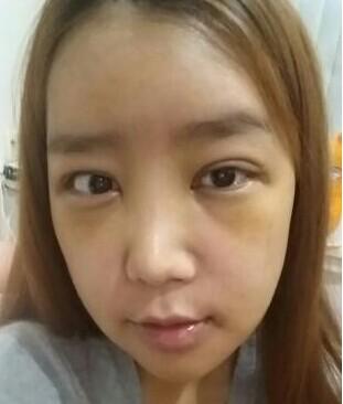 下巴矫正+双眼皮手术案例 是不是变得漂亮很多呢?
