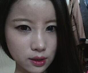 眼综合+鼻综合+脂肪移植+去眼袋案例