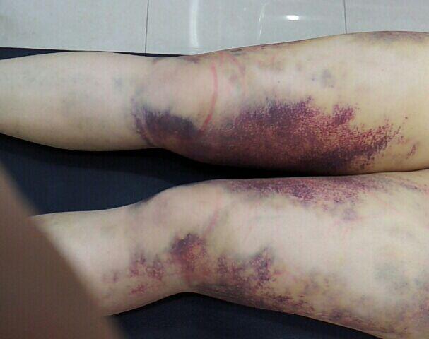 大腿吸脂案例 大腿吸脂后如何恢复快?